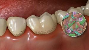 I batteri aderiscono alla superficie dei denti