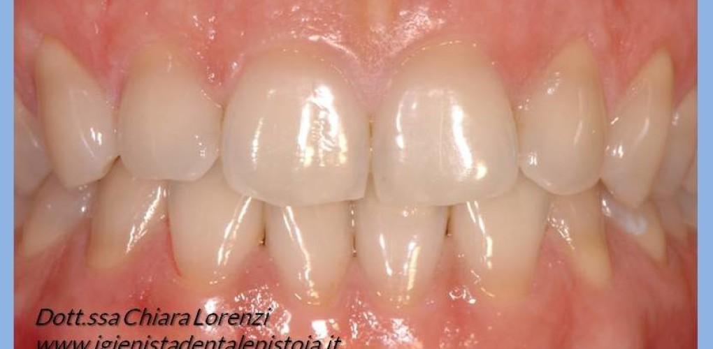 Cos'è la pulizia dei denti?