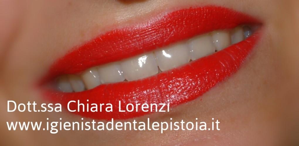 Denti bianchi sinonimo di denti sani