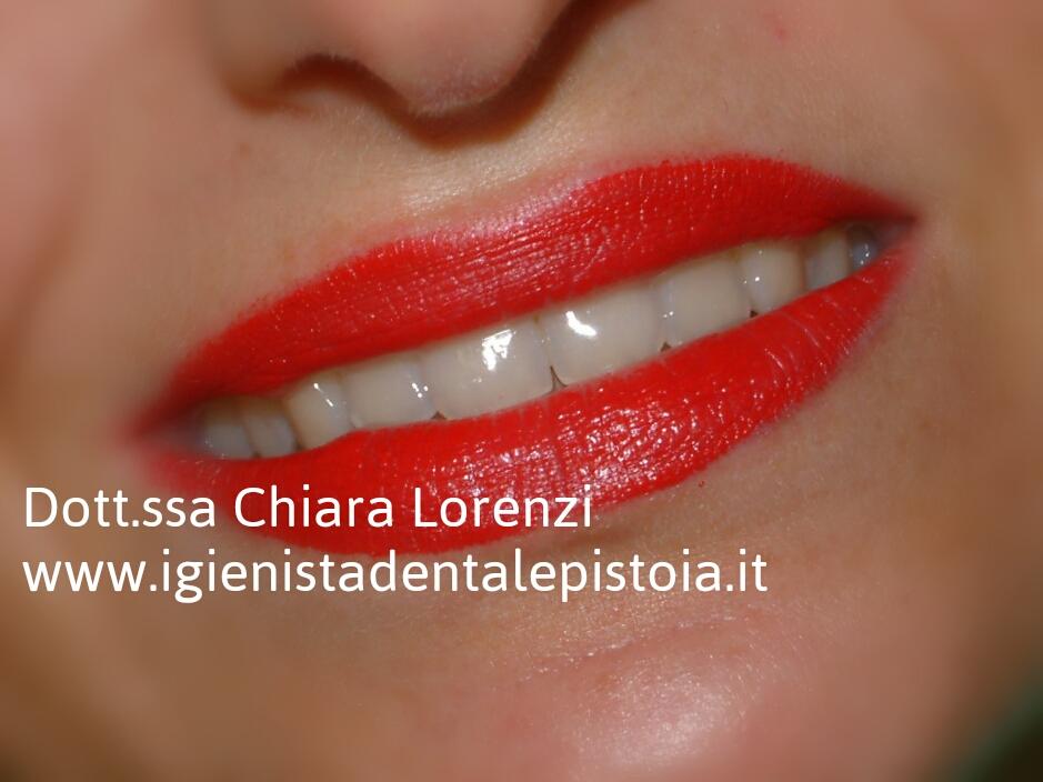 Denti bianchi sinonimo di denti sani - Sinonimo di diversi ...